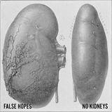 False Hopes - No Kidneys