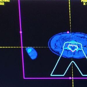 Madon - MRI